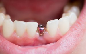 abutment for dental implant