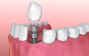components of dental implant