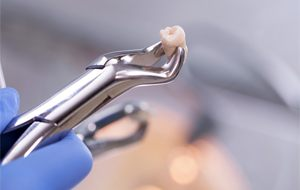 Dentist holding an extracted tooth