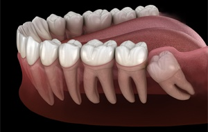 Model of an impacted wisdom tooth