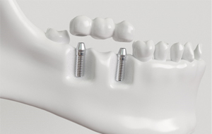 implant bridge model