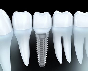 north jacksonville complete dentistry dental implants