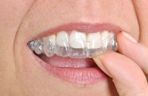 Taking care of Invisalign on Dunn Avenue.