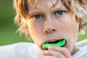 mouthguard for teeth protection