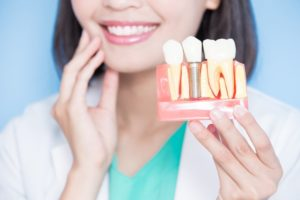 woman holding model of dental implant