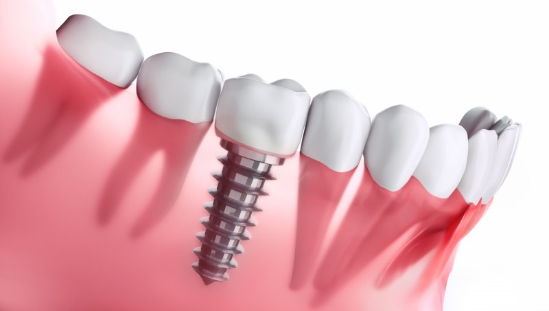a digital image of a single tooth dental implant sitting on the lower arch between two healthy teeth